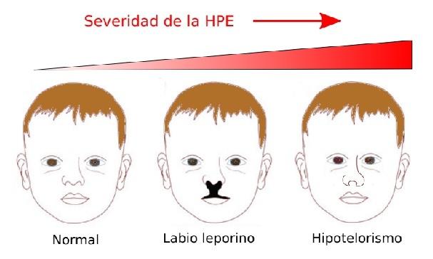 Investigador de la UNLP tras las huellas de un grave trastorno genético hereditario